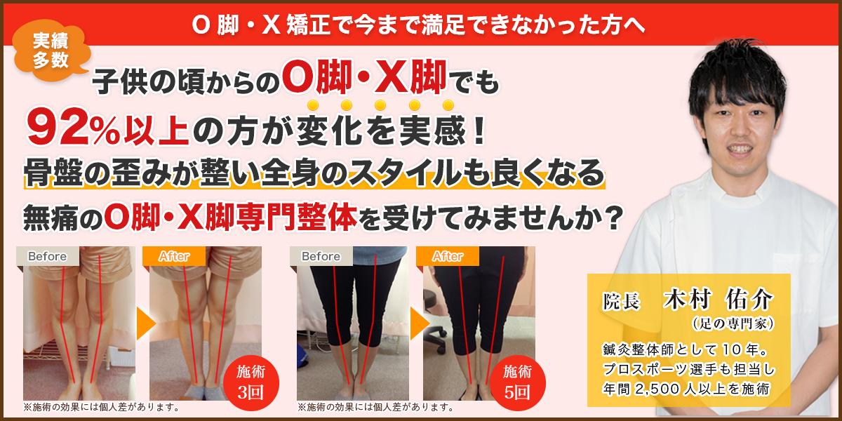 実績多数!子供の頃からのO脚・X脚でも92%以上の方が変化を実感!骨盤の歪みが整い全身のスタイルも良くなる無痛のO脚・X脚専門整体を受けてみませんか?