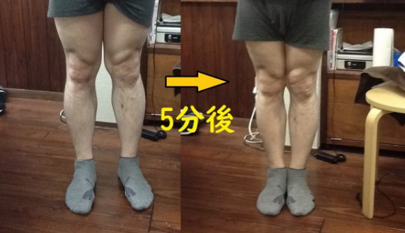 治療側も驚いた!X脚が短時間で変化