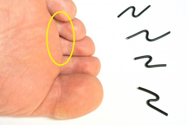 足の指の消えない痛みはモートン神経腫の疑いあり!?