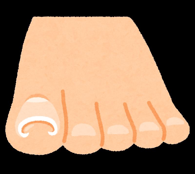 重複爪は放置してしまうと危ない!重複爪についてとケアについて