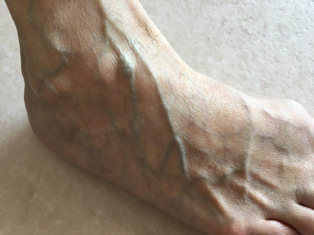 10人に1人は下肢静脈瘤?下肢静脈瘤の原因と対処方法