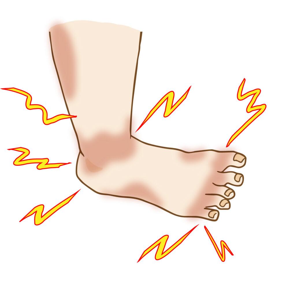 異常はないといわれたけど、足が痛い…足根管症候群とは